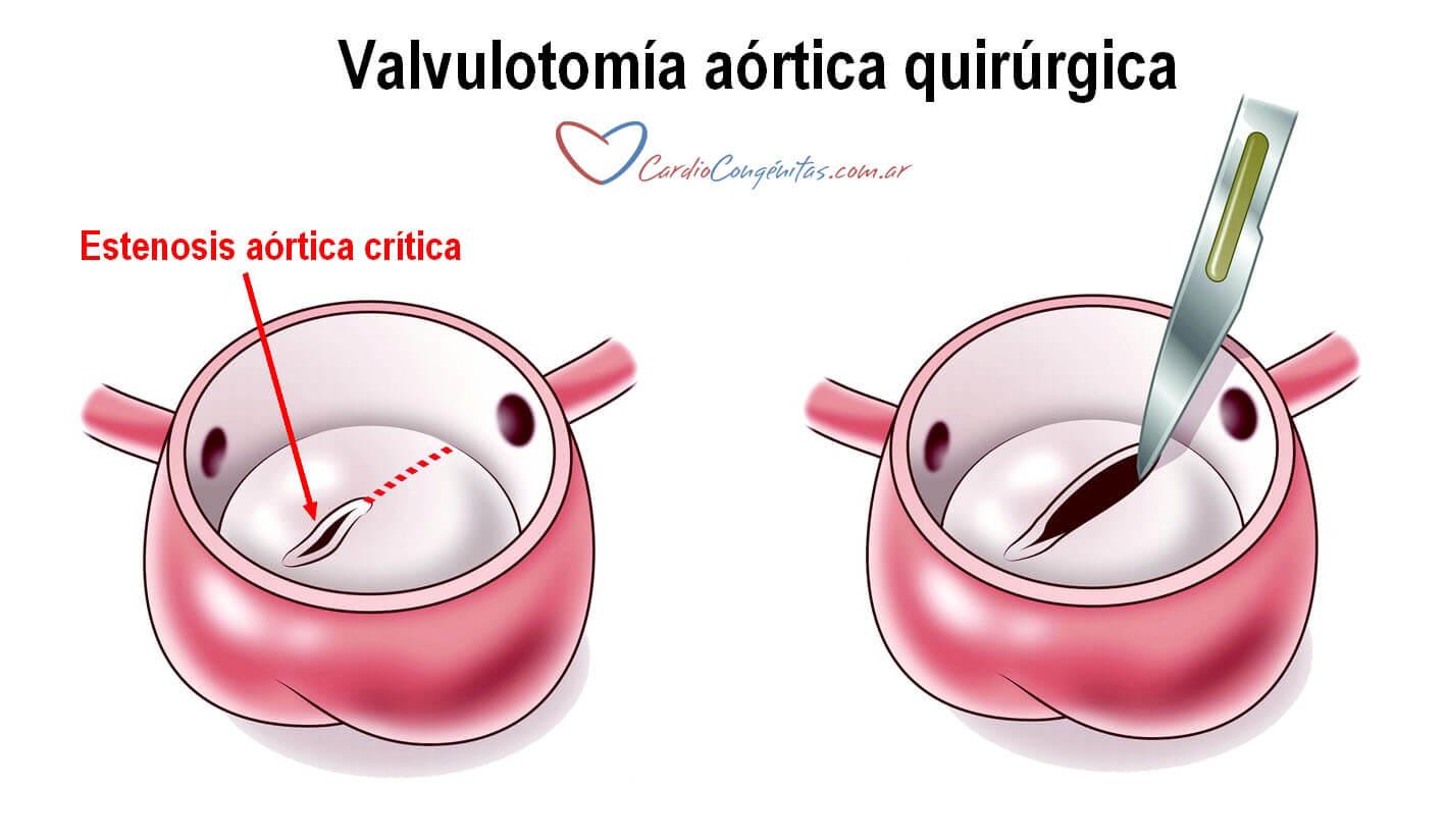 Valvulotomia-qca