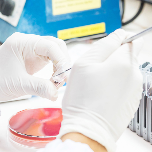 Infectious Disease Testing Products