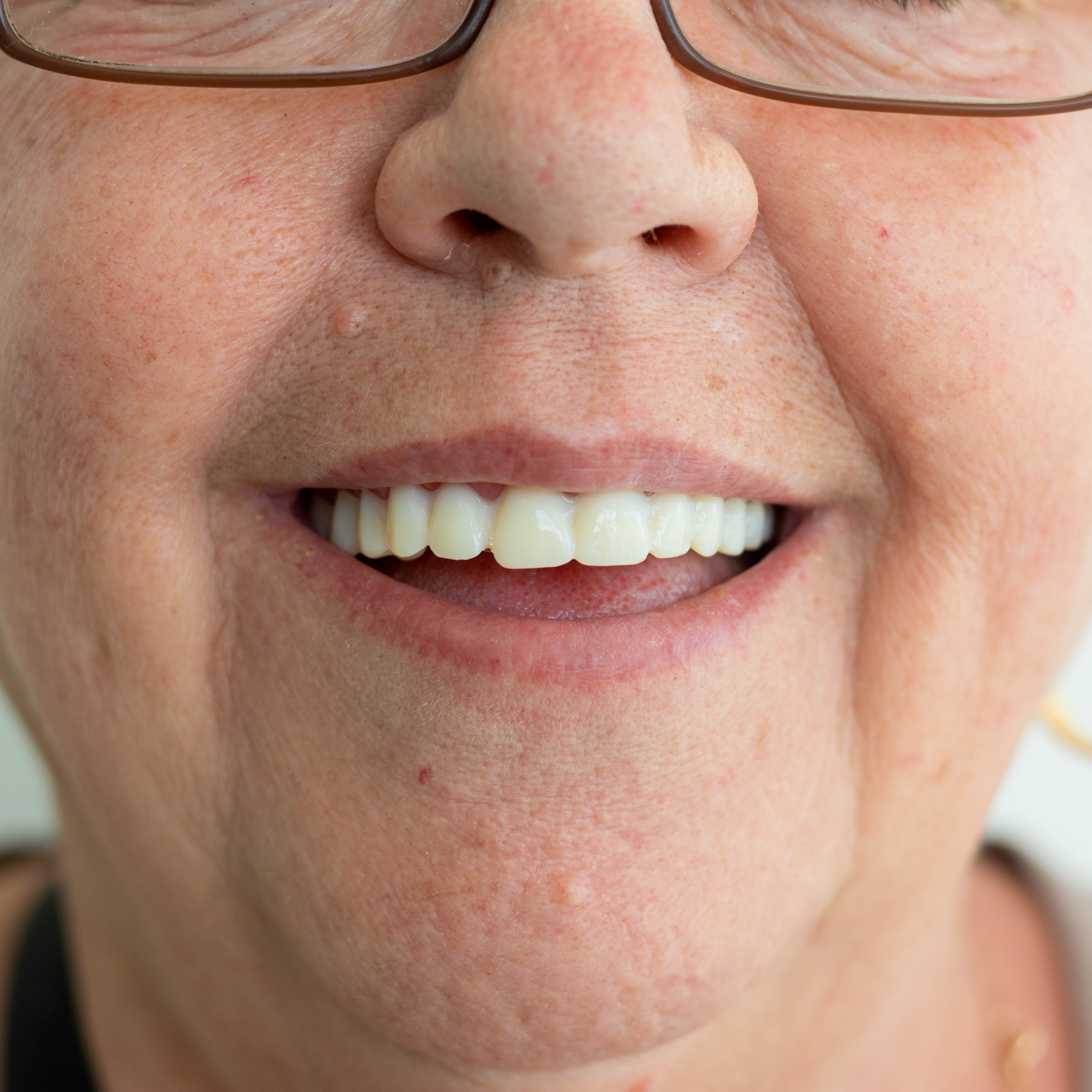 A smiling woman receives her new replacement dentures in a box outside of her door. Denture Care Shop's fast shipping works for emergency dentures or dentures in a day.