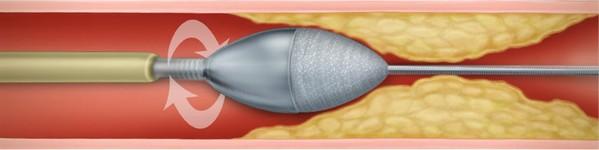 Rotablație   Centrele Ares   Inovatie in Cardiologie