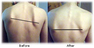 Photo of before and after Quantum Touch on shoulder blades