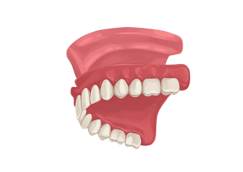 Full upper dentures