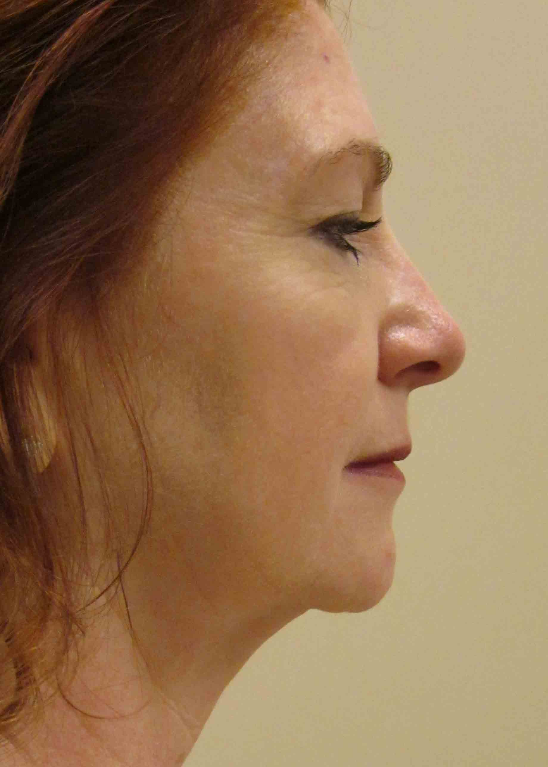 12230-1-preop-facelift-profile.jpg