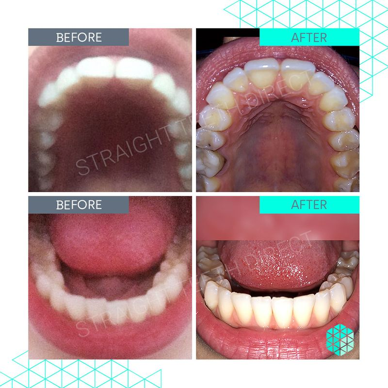 Straight Teeth Direct Review by Maria