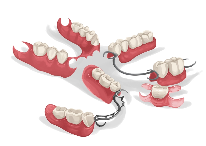 Different types of partial dentures