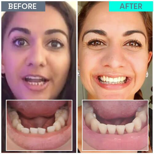 Shivali's straight teeth journey