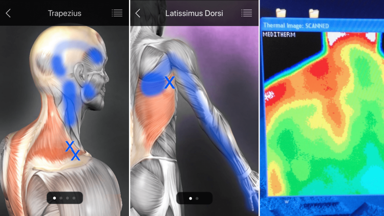 Shoulder Injury Trigger Points and Infrared