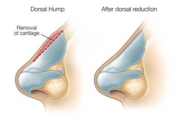 functional-septorhinoplasty r6