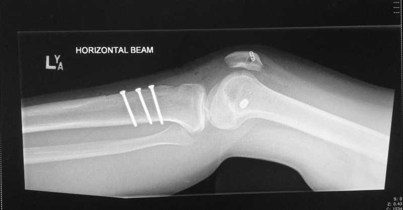 Ενδεικτική ακτινογραφία επιτυχημένης θεραπείας αστάθειας επιγονατιδομηιριαίας άρθρωσης.
