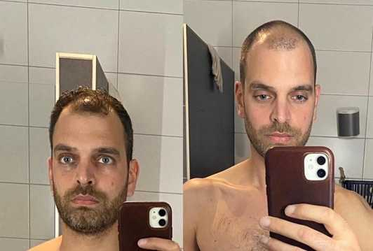 My face on day 1 of the 75 hard challenge vs. day 75