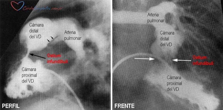 Hemodinamia-doble-camara