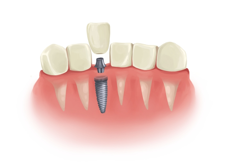 Single dental implant in parts