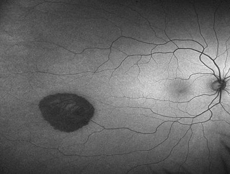 Choroidal Naevomelanocytic Lesions