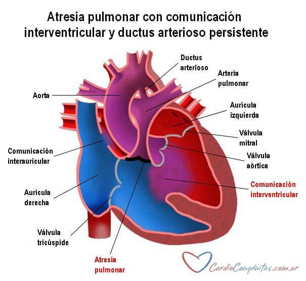 AP-con-CIV-y-DAP-anatomia