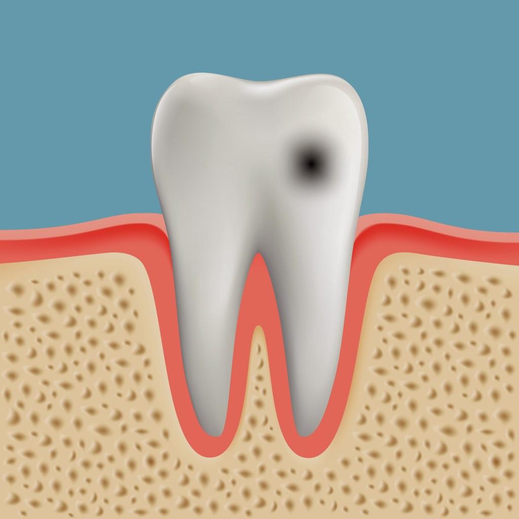 Mancha Preta dente