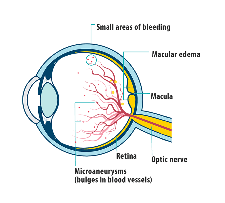 Picture of effects of DME on the eye, showing small areas of bleeding, macular edema, macula, retina, and microaneurysms.