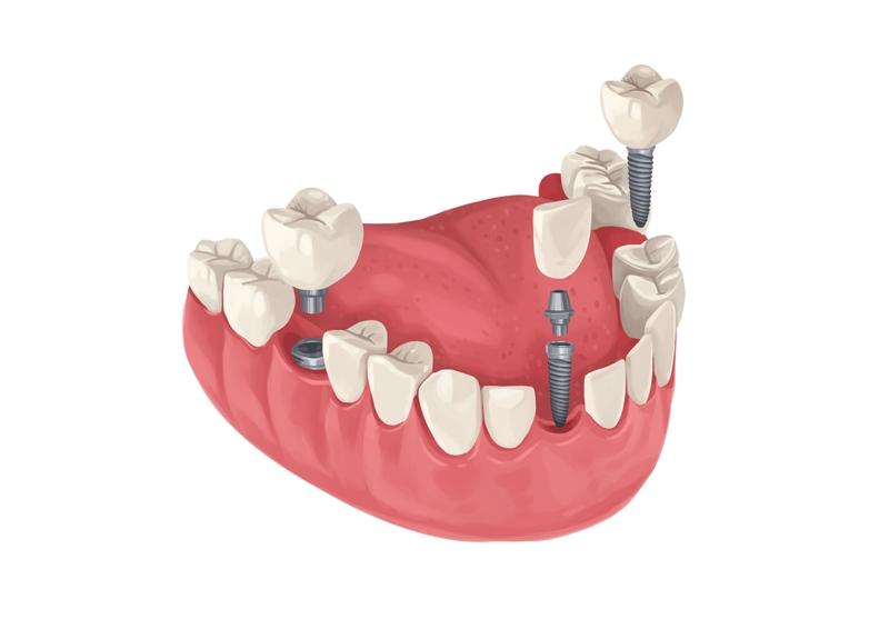 Multiple dental implants in jaw