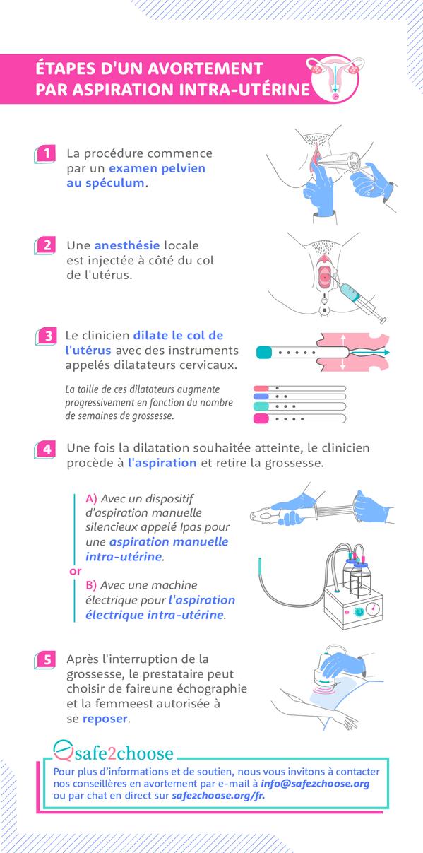 etapes de l avortement par aspiration Intra uterine