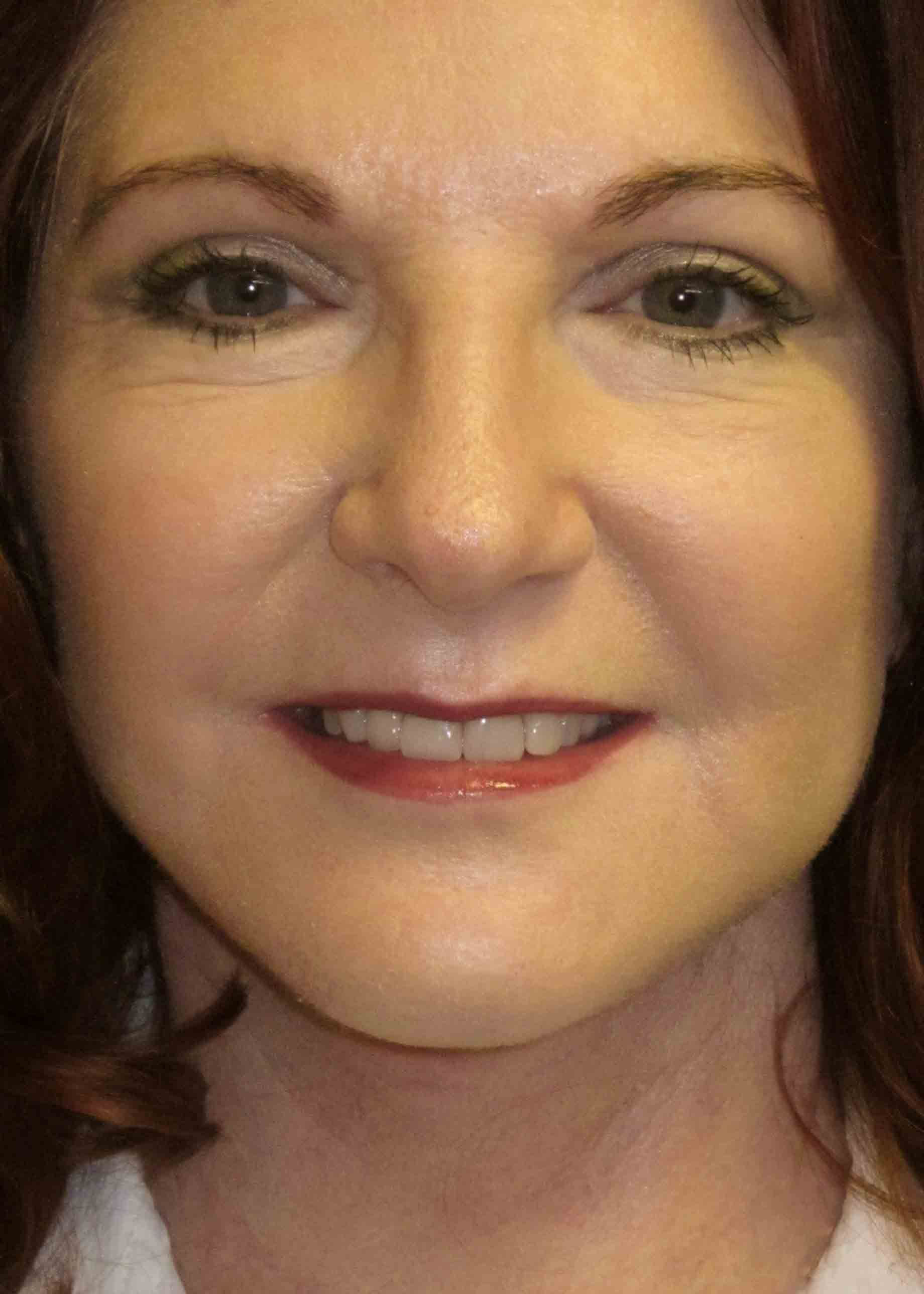 12230-4-post-op-facelift-frontal.jpg