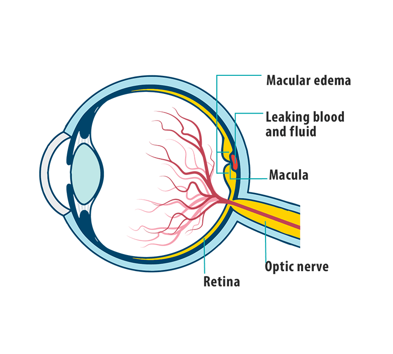 Picture of effects of Wet AMD on the eye, showing leaking blood and fluid, macula, and retina.