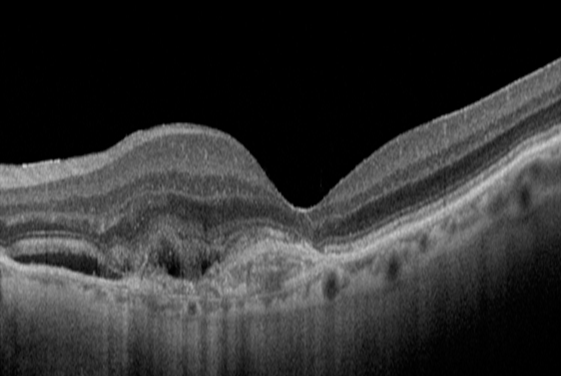 Stable Age-Related Macular Degeneration