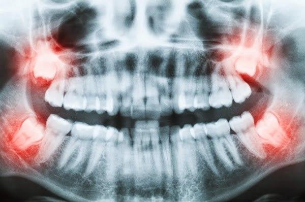 radiografia-panoramica-terceiros-molares-sisos