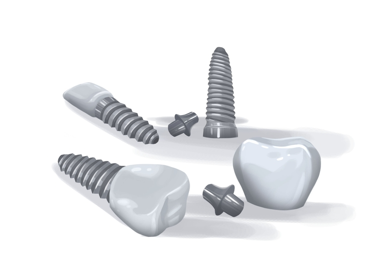 Different parts of dental implant
