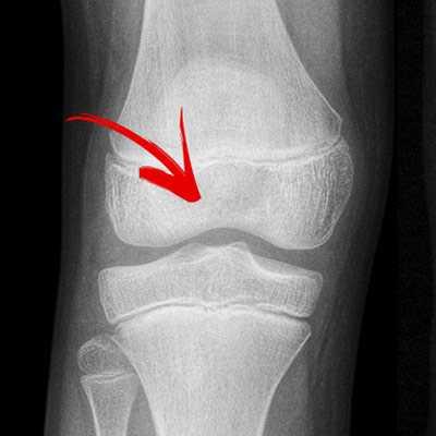 Ακτινογραφία φυσιολογικού γόνατος