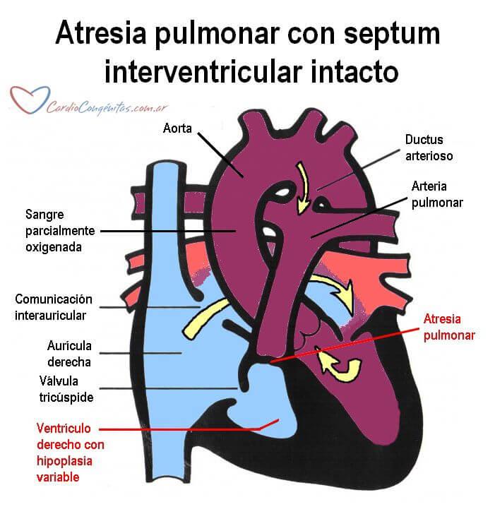 AP-con-SIV-intacto-anatomia