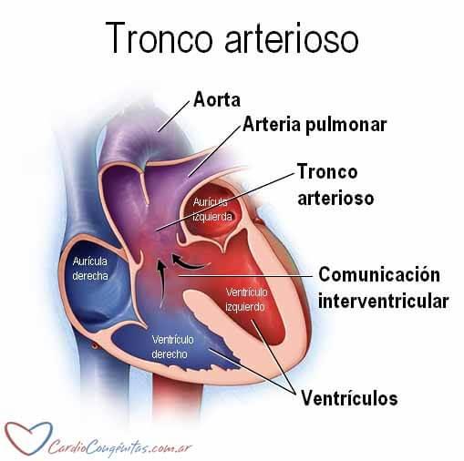 Tronco-arterioso-esquema