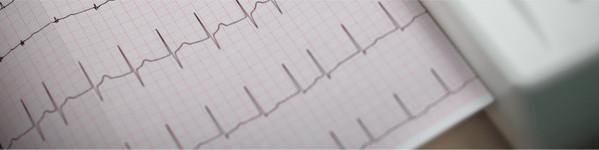 Electrocardiograma   Centrele Ares   Inovatie in Cardiologie