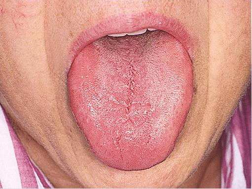 boca seca causas