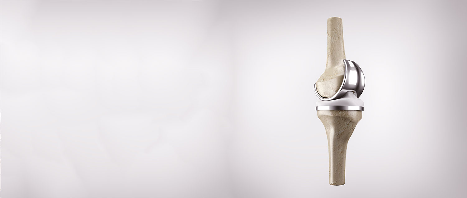 Depuy Attune Knee Implant Lawsuit