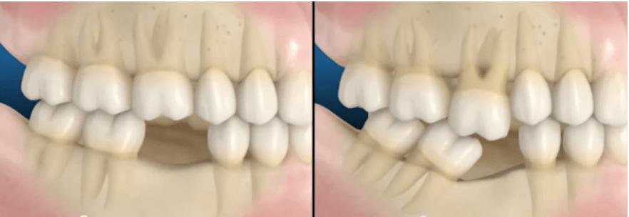 perda de dentes e suas consequecias.