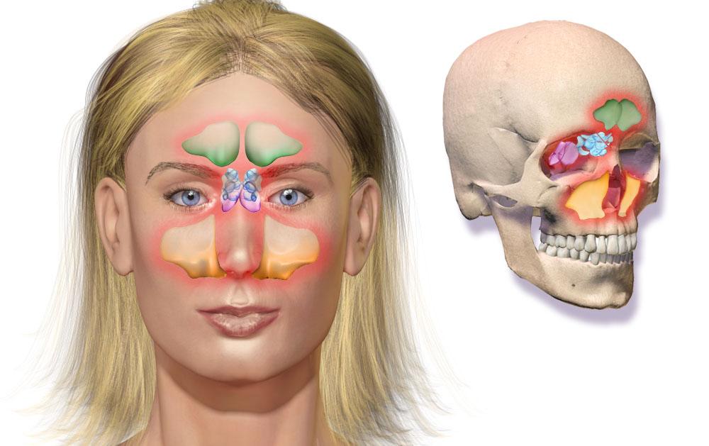 Schéma des sinus