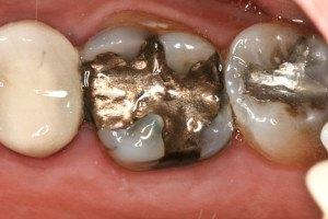 mancha nos dentes por amalgama