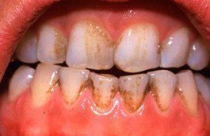 mancha nos dentes por cigarro