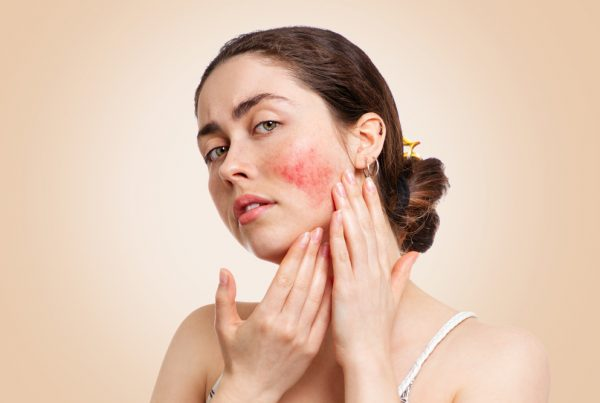 young lady with rosacea on her face
