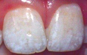 mancha nos dentes por fluorose