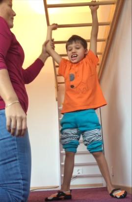 cerebral-palsy-symptoms-melvin-starts-walking
