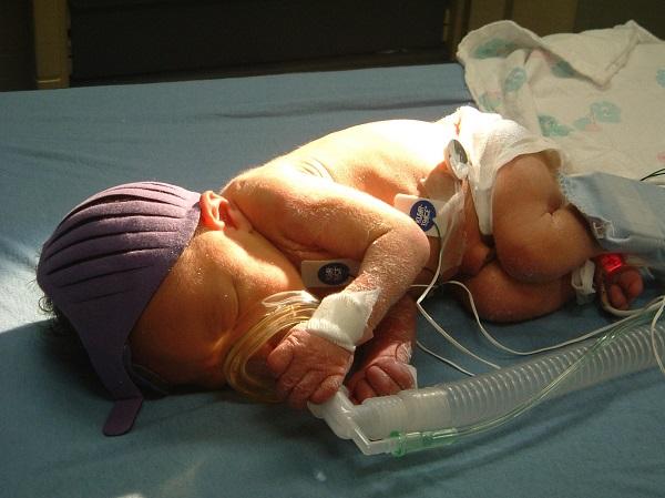 genetic-abnormality-brain-injury-baby-joshua