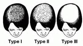 Womens non-surgical and transplants options Krueger's Hair Replacement Center WI