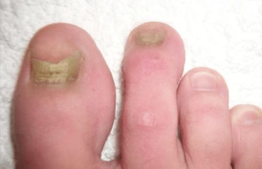 Before Nail Mycosis Solution