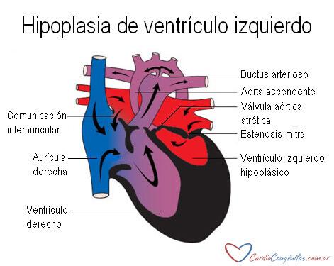 Anatomia-HLHS