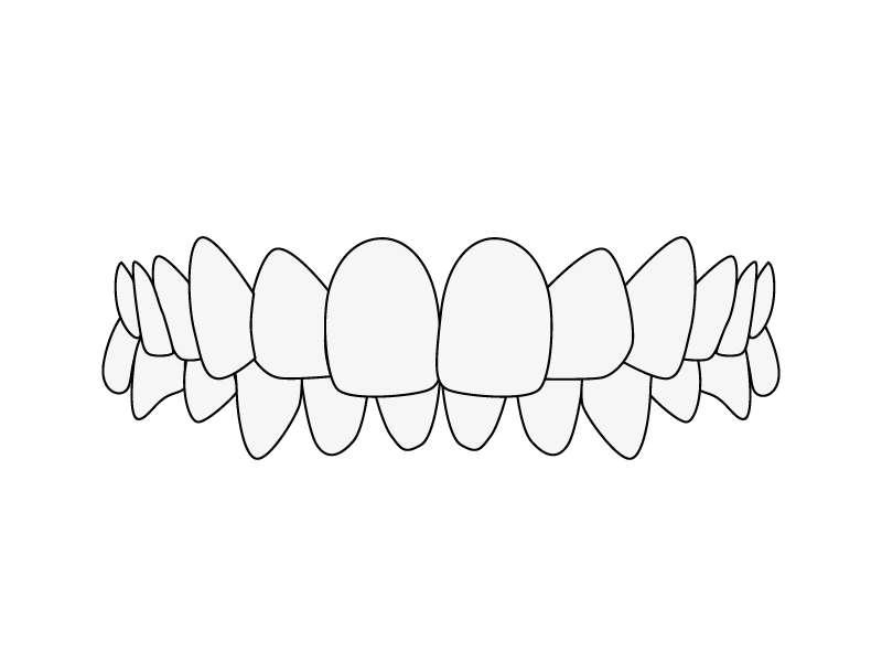 Zahnfehlstellung Tiefbiss