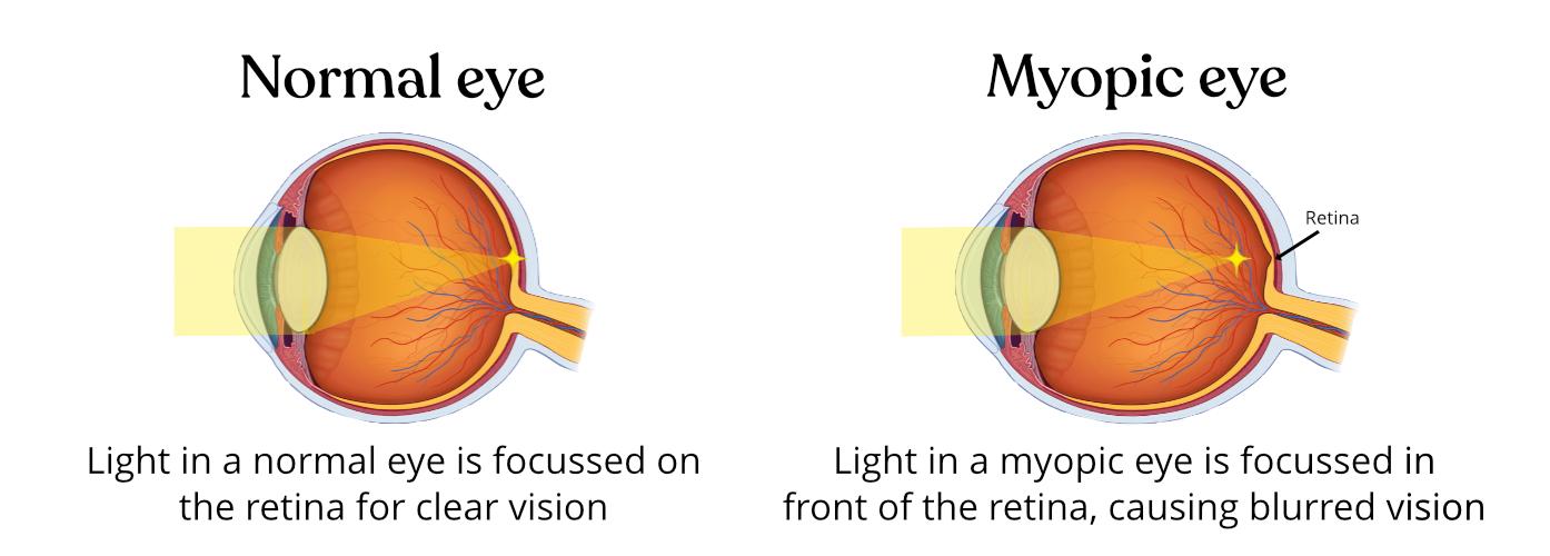miopia viziunii 4