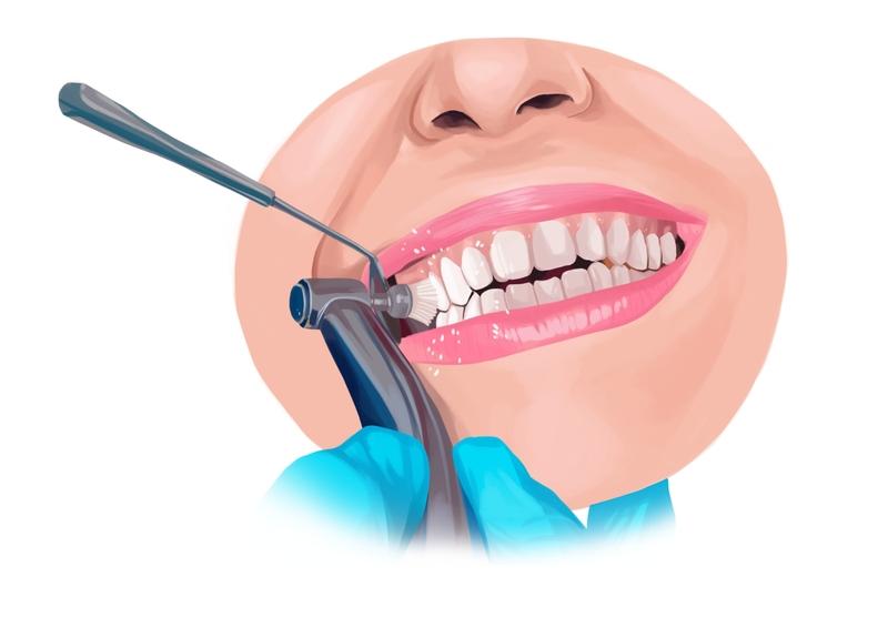 Professional dental exam