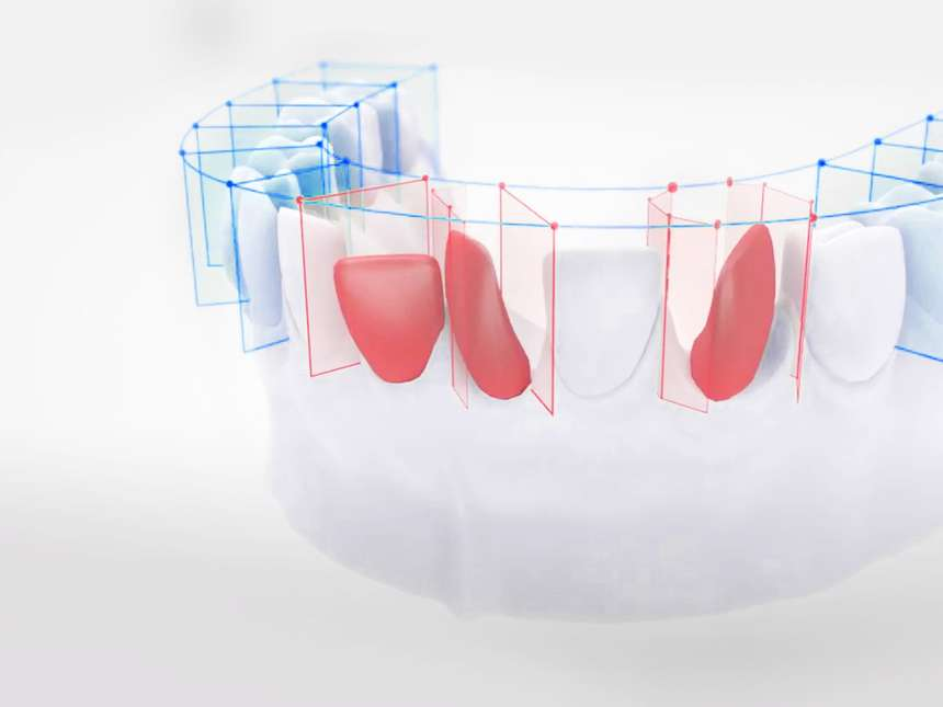 Zahnfehlstellung korrigieren