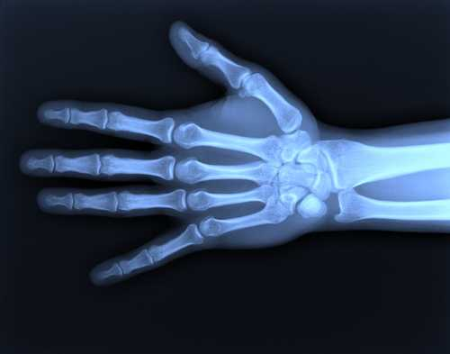 A Day in the Life of an X-Ray Technician