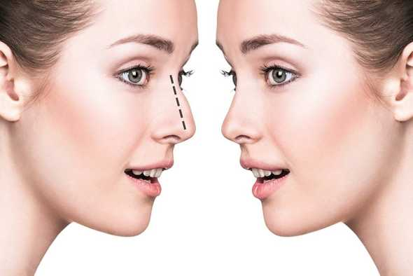functional-septorhinoplasty card image